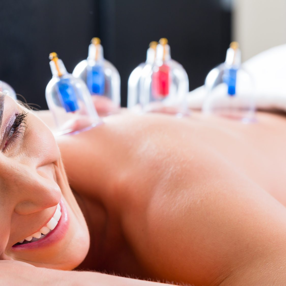 Alternative practitioner cupping woman in course of alternative therapy treatment